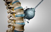 Bone Density and Bone Strength
